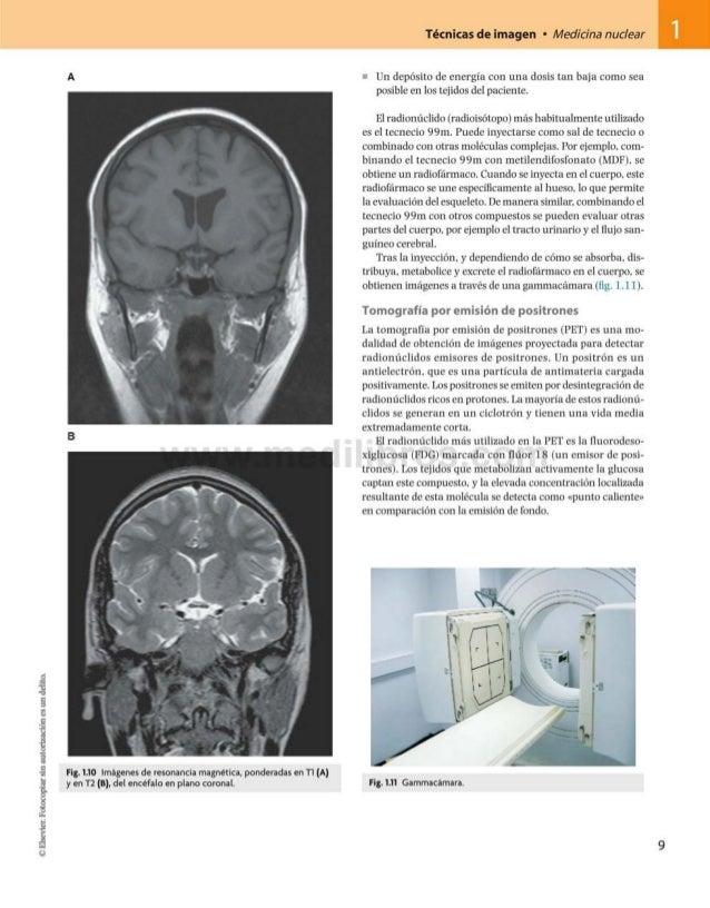©Elsevier.Fotocopiarsinautorizaciónesundelito. Técnicas de imagen • Medicina nuclear 1 A Fig. 1.10 Imágenes de resonancia ...
