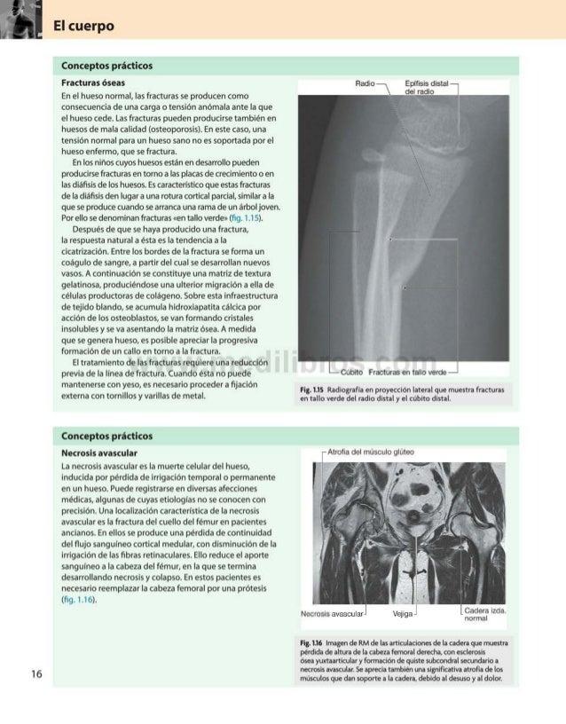 El cuerpo Conceptos prácticos Fracturas óseas En el hueso normal, las fracturas se producen como consecuencia de una carga...