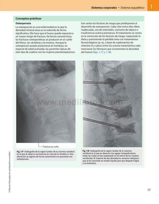 Sistemas corporales • Sistema esquelético Conceptos prácticos Osteoporosis La osteoporosis es una enfermedad en la que la ...