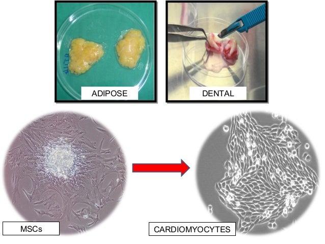 ADIPOSE DENTAL MSCs CARDIOMYOCYTES