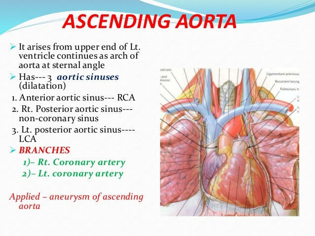 Great vessels artery