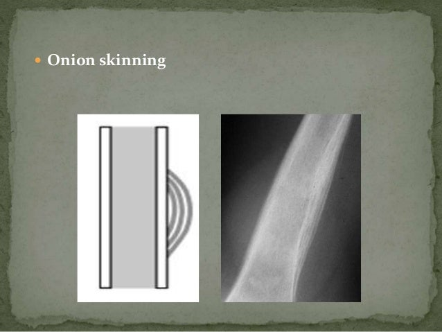 BONE SCANS • Uses very low radioactive material like technetium to assess spread to other bones - Polyostotic involvement ...