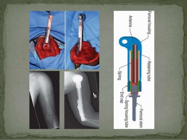 Management of primary bone tumours