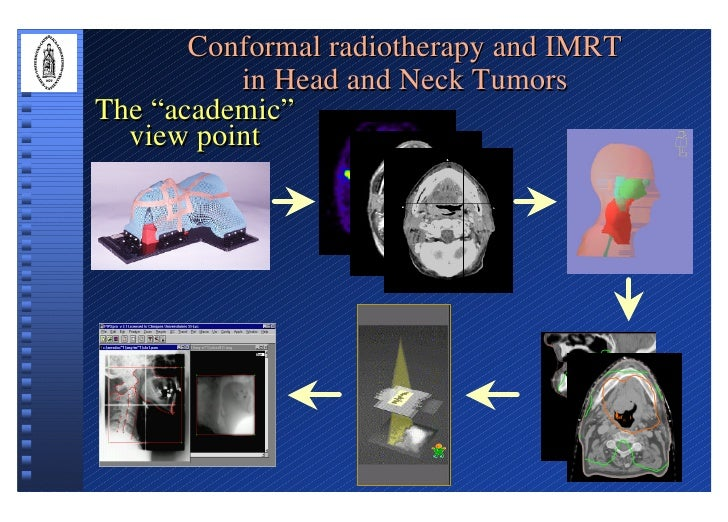 """Conformal radiotherapy and IMRT           in Head and Neck Tumors The """"academic""""   view point"""