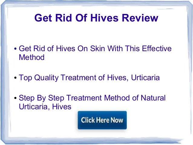 Get Rid Of Hives Review● Get Rid of Hives On Skin With This EffectiveMethod● Top Quality Treatment of Hives, Urticaria● St...