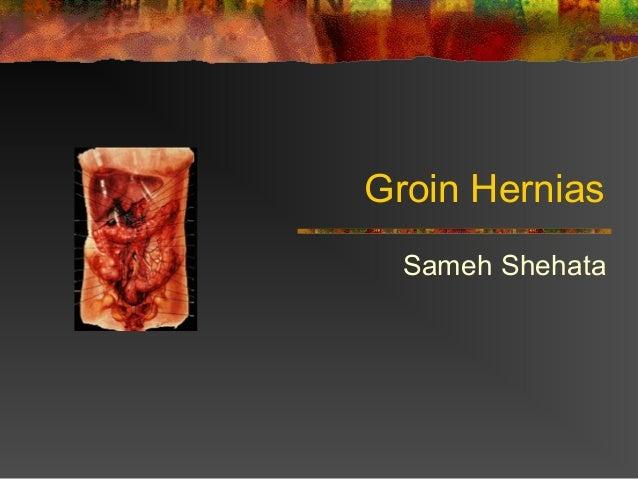 Groin HerniasSameh Shehata