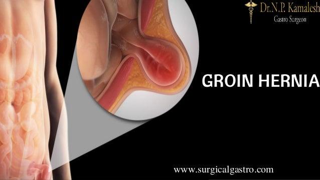 GROIN HERNIA www.surgicalgastro.com
