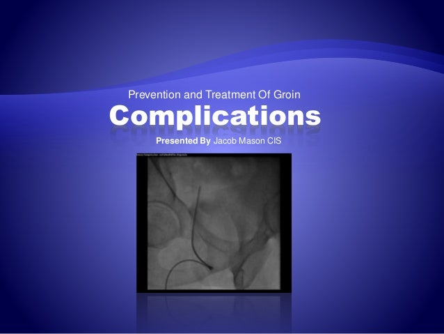Prevention and Treatment Of Groin Complications Presented By Jacob Mason CIS