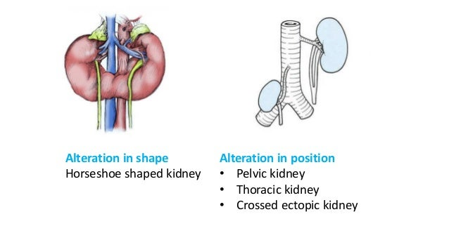 Gross anatomy and Histology of urinary system.