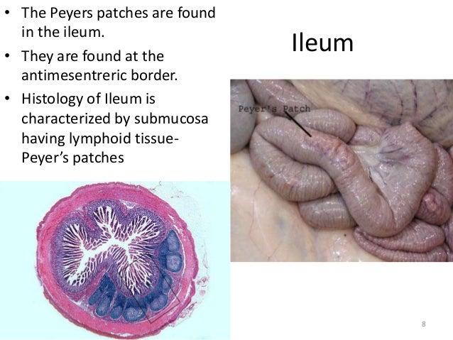 Gross anatomy & histology of ileum, jejunum