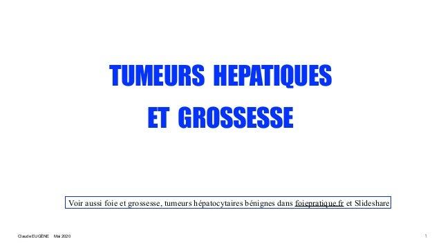 Claude EUG�NE Mai 2020 TUMEURS HEPATIQUES ET GROSSESSE 1 Voir aussi foie et grossesse, tumeurs h�patocytaires b�nignes dan...