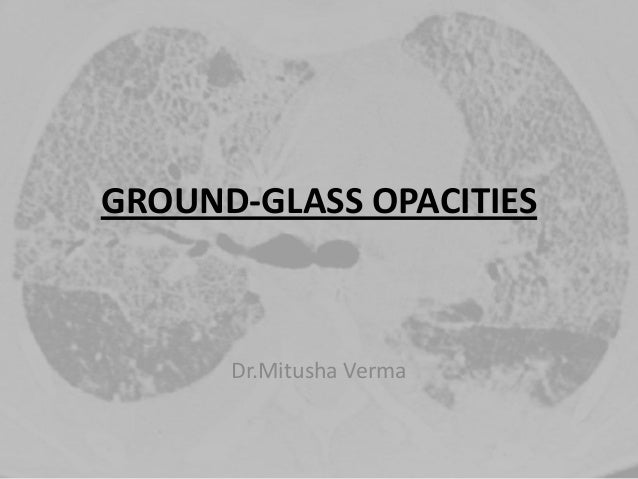 GROUND-GLASS OPACITIES Dr.Mitusha Verma