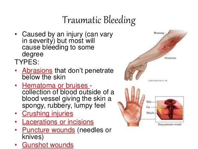 how to temporarily stop menstrual bleeding