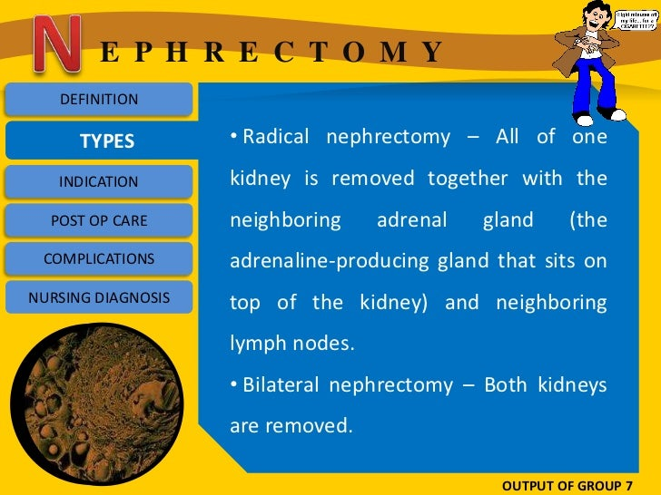 E P H R E C T O M Y   DEFINITION      TYPES         • Radical nephrectomy – All of one   INDICATION       kidney is remove...