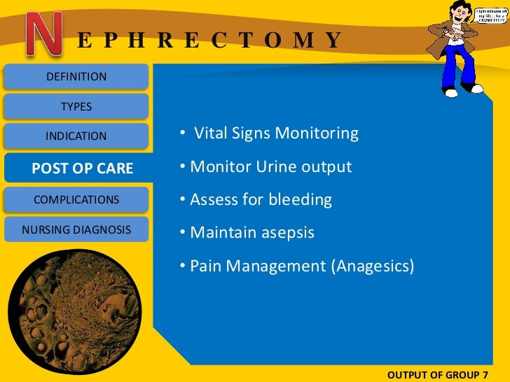 E P H R E C T O M Y   DEFINITION      TYPES   INDICATION       • Vital Signs Monitoring POST OP CARE       • Monitor Urine...
