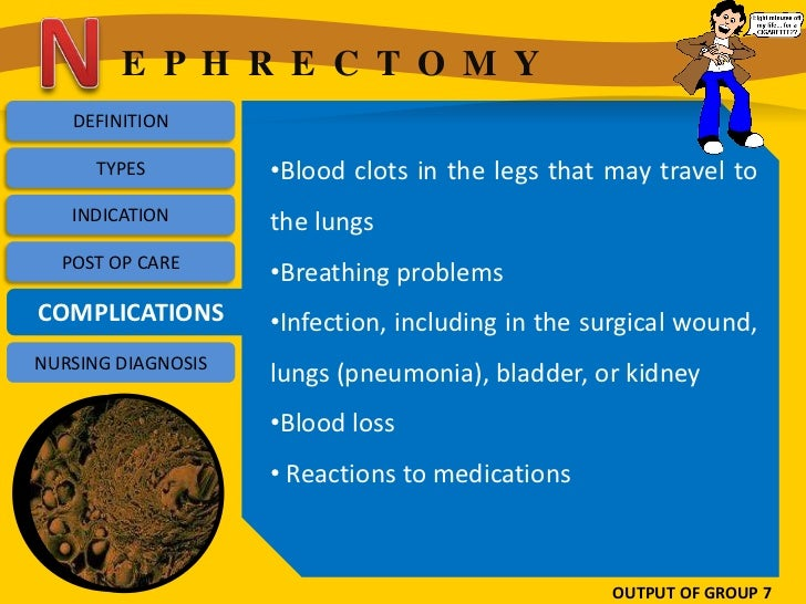 E P H R E C T O M Y   DEFINITION      TYPES         •Blood clots in the legs that may travel to   INDICATION       the lun...