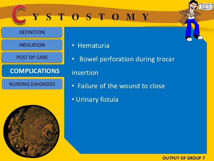 Y S T O S T O M Y   DEFINITION   INDICATION       • Hematuria  POST OP CARE      • Bowel perforation during trocarCOMPLICA...