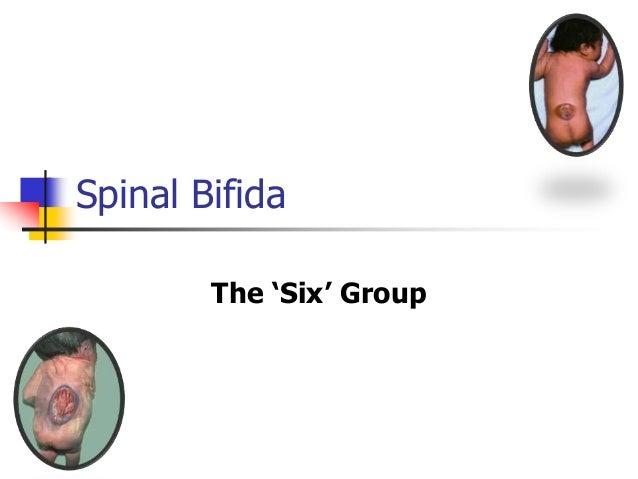 Spinal Bifida The 'Six' Group