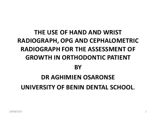 THE USE OF HAND AND WRIST RADIOGRAPH, OPG AND CEPHALOMETRIC RADIOGRAPH FOR THE ASSESSMENT OF GROWTH IN ORTHODONTIC PATIENT...