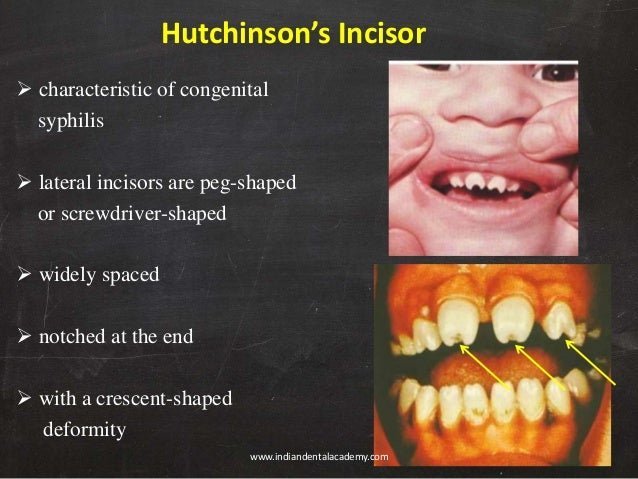 Hutchinsons teeth