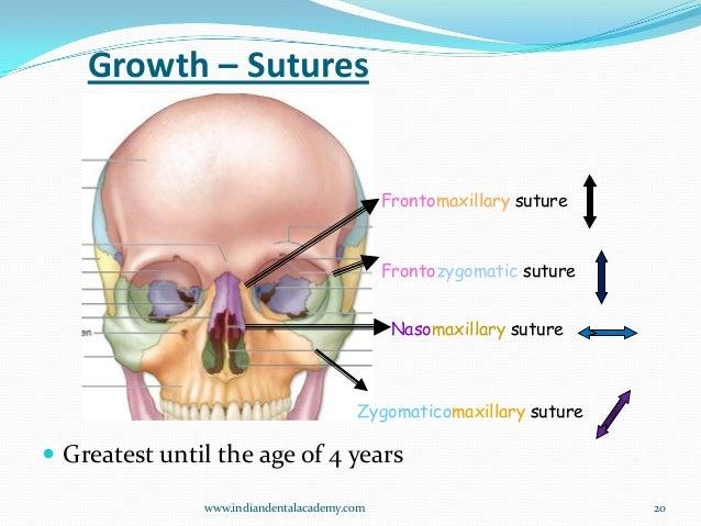 Nasomaxillary Suture