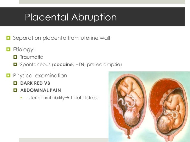 cocaine and pregnancy complications