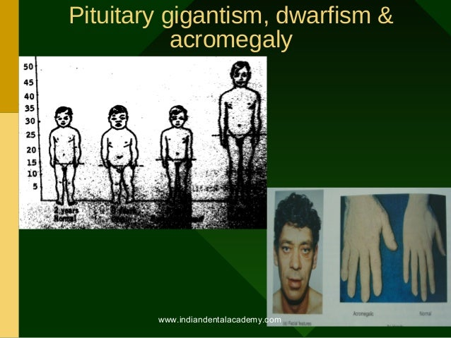 gigantism and dwarfism Pituitary gigantism the abnormal body growth due to excessive production of growth hormone in the pituitary gland like pituitary dwarfism, it can also be caused by tumor, head injuries, or infections.