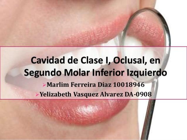 Cavidad de Clase I, Oclusal, en Segundo Molar Inferior Izquierdo Marlim Ferreira Diaz 10018946 Yelizabeth  Vasquez Alvar...