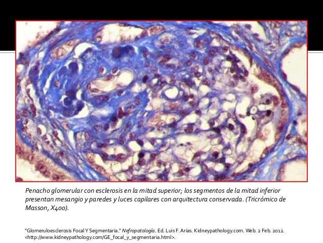 Penacho  glomerular  con  esclerosis  en  la  mitad  superior;  los  segmentos  de  la  mitad  i...