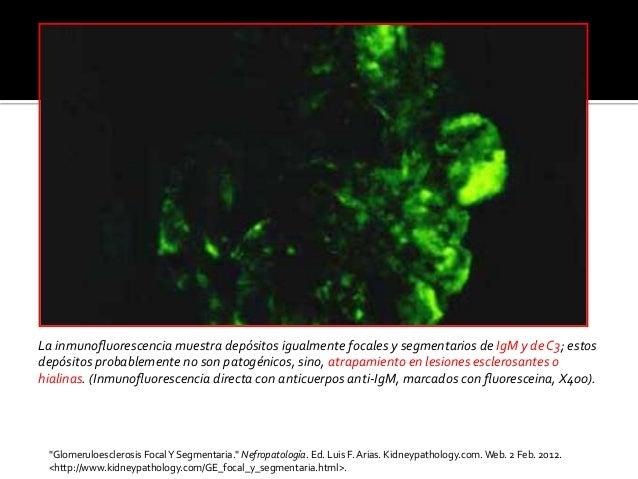 La  inmunofluorescencia  muestra  depósitos  igualmente  focales  y  segmentarios  de  IgM  y  de  ...