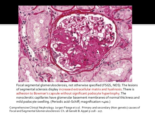 Focal  segmental  glomerulosclerosis,  not  otherwise  specified  (FSGS,  NOS).  The  lesions   of  s...