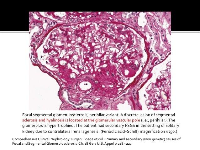 Focal  segmental  glomerulosclerosis,  perihilar  variant.  A  discrete  lesion  of  segmental   scler...