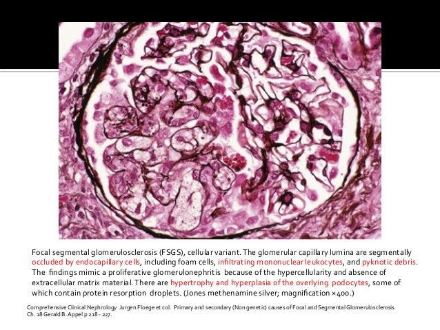 Focal  segmental  glomerulosclerosis  (FSGS),  cellular  variant.  The  glomerular  capillary  lumina  ...