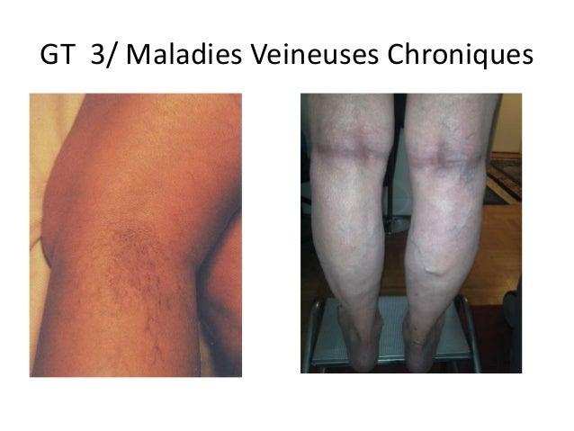 GT 3/ Maladies Veineuses Chroniques
