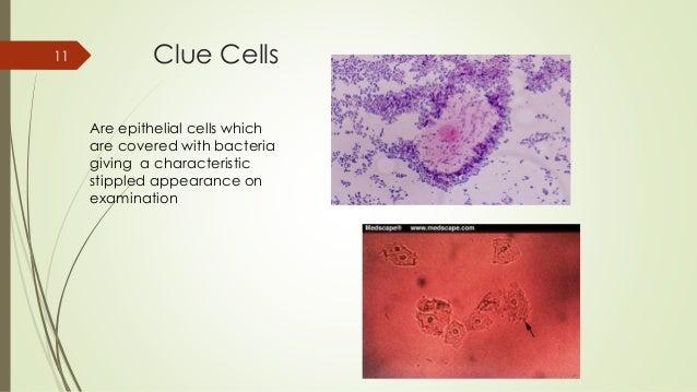 Bacterial Vaginosis Treatment