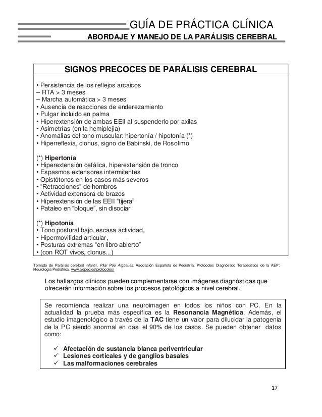 Lujoso Anatomía De La Parálisis Cerebral Fotos - Anatomía de Las ...