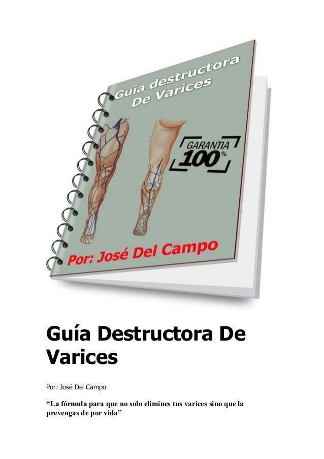 """Guía Destructora De Varices Por: José Del Campo """"La fórmula para que no solo elimines tus varices sino que la prevengas de..."""
