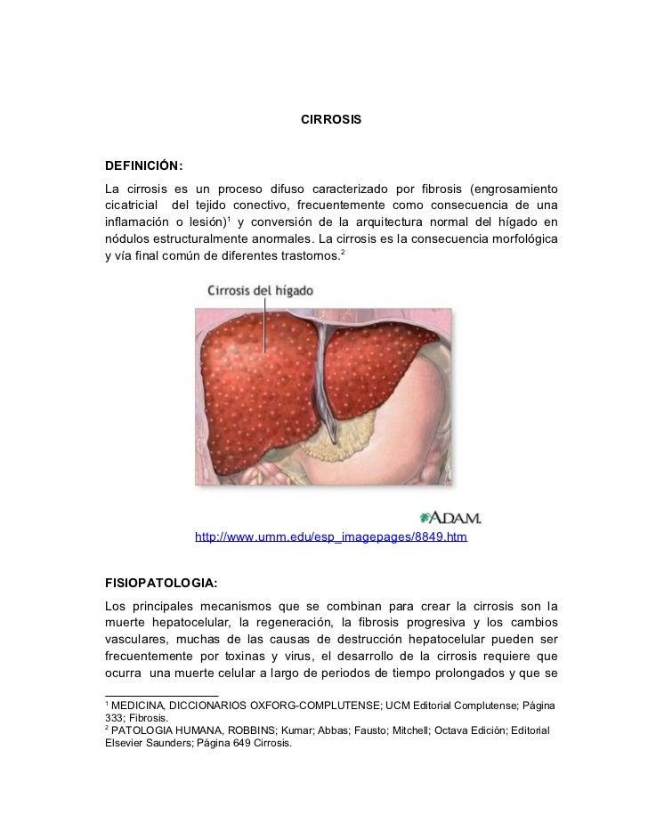 cirrosis heptatica, hepatitis y pancreatitis