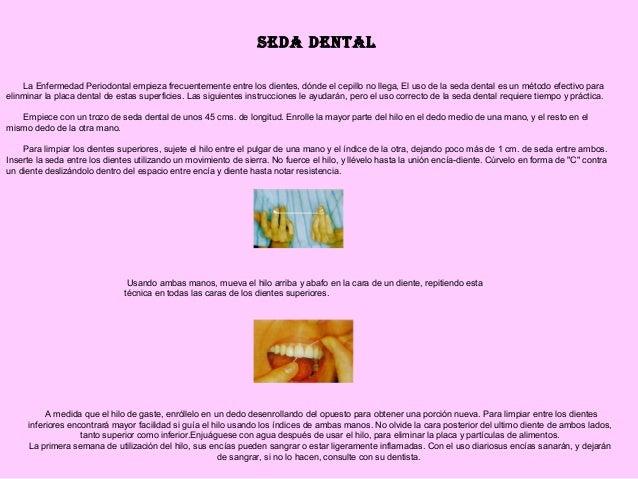 La Enfermedad Periodontal empieza frecuentemente entre los dientes, dónde el cepillo no llega, El uso de la seda de...