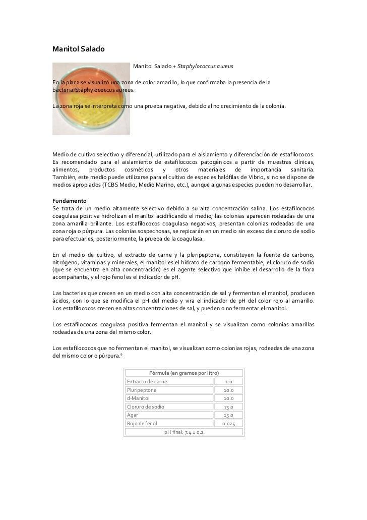 Manitol Salado                                  Manitol Salado + Staphylococcus aureus  En la placa se visualizó una zona ...