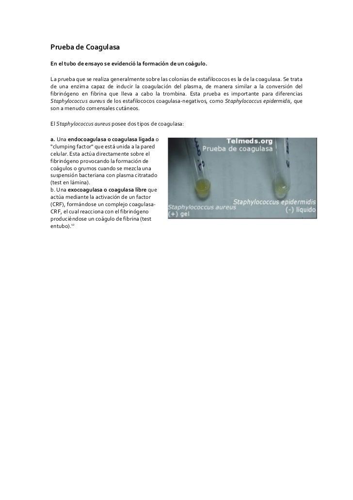 Prueba de Coagulasa  En el tubo de ensayo se evidenció la formación de un coágulo.  La prueba que se realiza generalmente ...