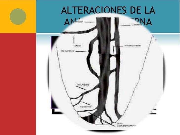 Anatomia Topografica de la cavidad pulpar.