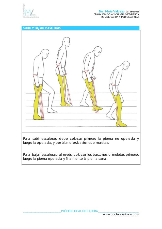 Lujoso Anatomía De Reemplazo Total De Cadera Patrón - Imágenes de ...