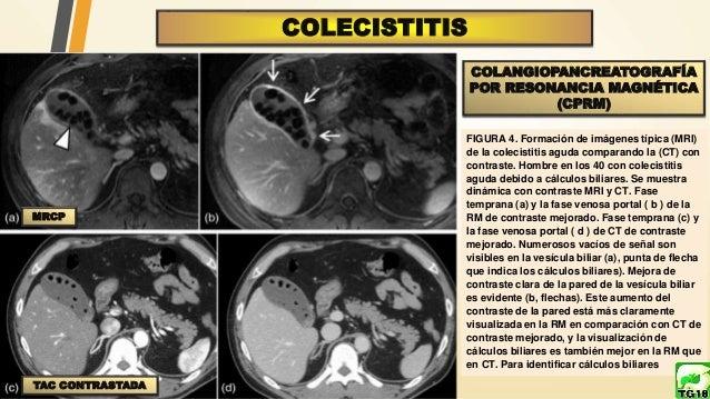 Colecisitis y Colangitis Guias Clinicas Tokio 2018