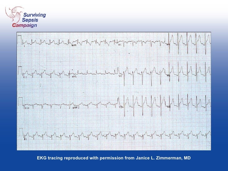 EKG tracing reproduced with permission from Janice L. Zimmerman, MD