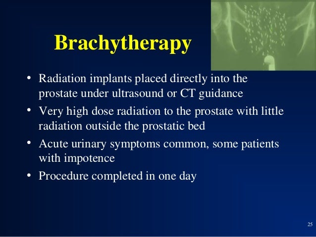Pelvis Radiation Therapy Side Effects How Radiation