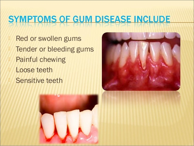 Gum disease all about symptoms, risk and treatment