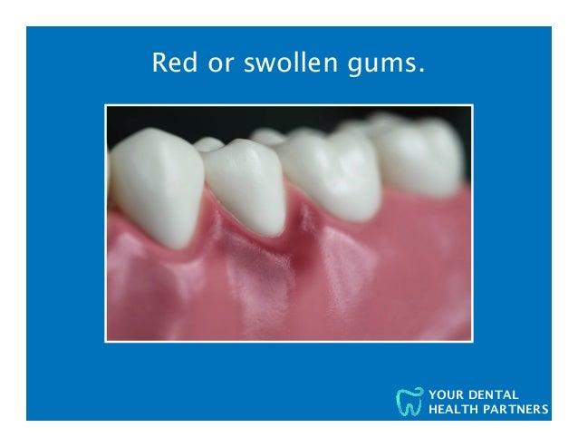 The Seven Signs You Might Have Gum Disease - Worcester, Taunton, Uxbridge Dentists  Slide 3