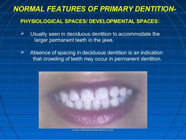 gum pads development of primary dentition certified fixed orthodon. Black Bedroom Furniture Sets. Home Design Ideas