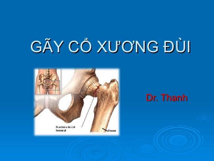 GÃY CỔ XƯƠNG ĐÙI Dr. Thanh